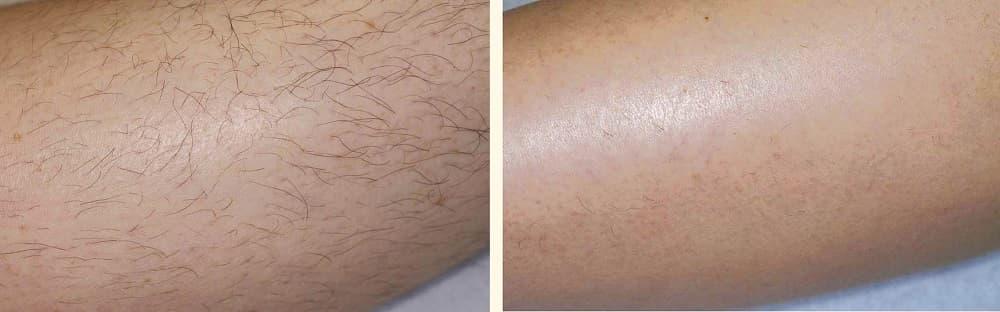 Лазерная эпиляция ног фото до и после