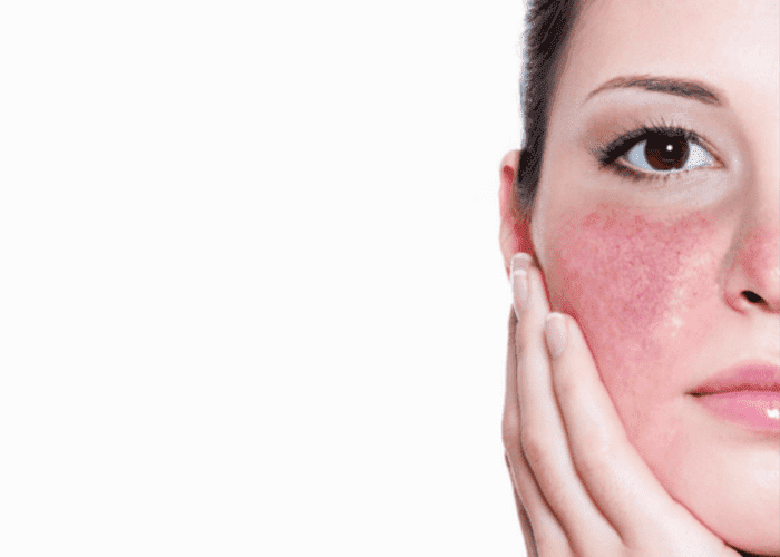 Лечение купероза