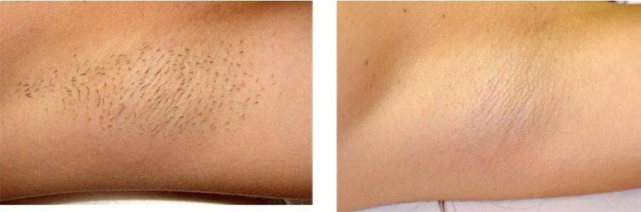 Лазерная эпиляция подмышек фото до и после