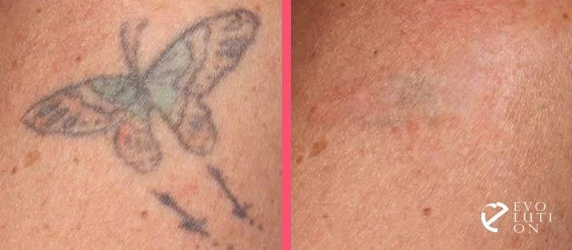 Удаление татуировки лазером