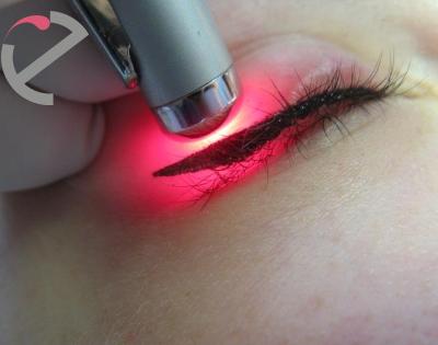 Удаление татуажа глаз лазером