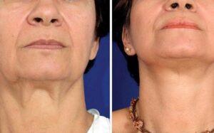 методы лечения дряблой кожи