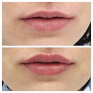Техники увеличения губ